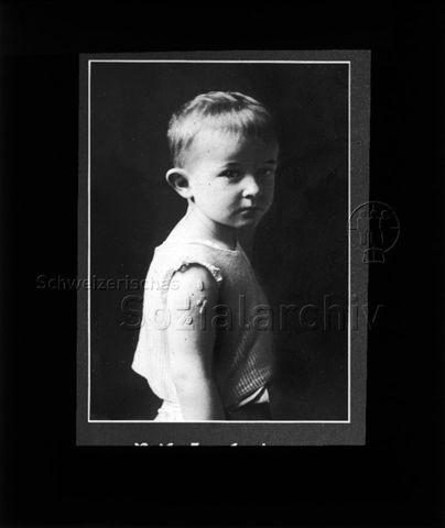"""Diaserie zum Thema Kinderkrankheiten; """"Reife Impfpocken"""" - Fotografie: Junge mit Impfpocken am Oberarm; um 1930"""
